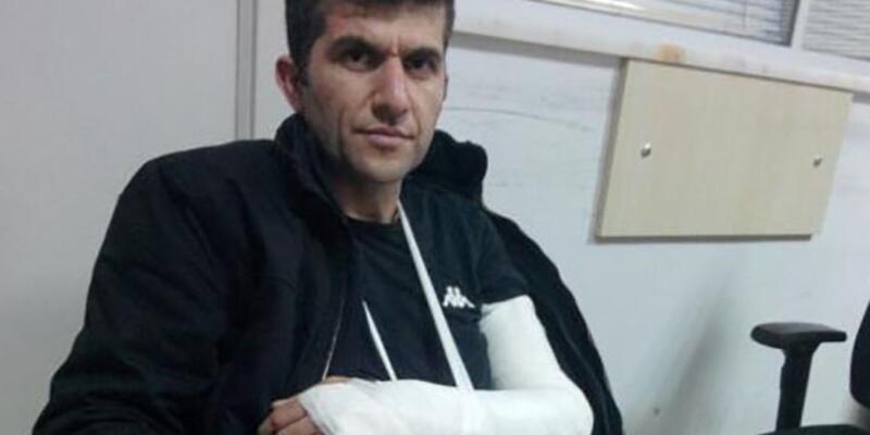 Grup Yorum üyesi Ali Aracı'nın gözaltında kolunu kırdılar