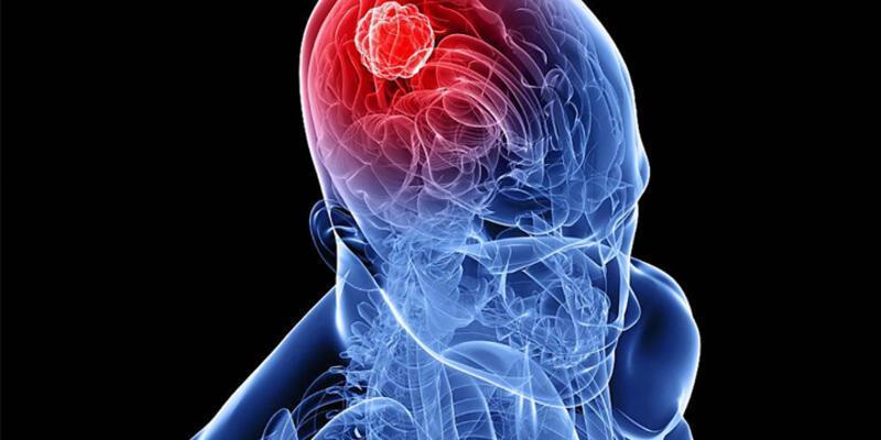 Beyinde şiddete eğilimi belirleyen merkez bulundu