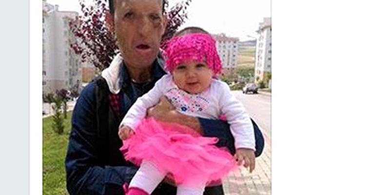 Yüz nakli olan baba kızıyla fotoğrafını paylaştı