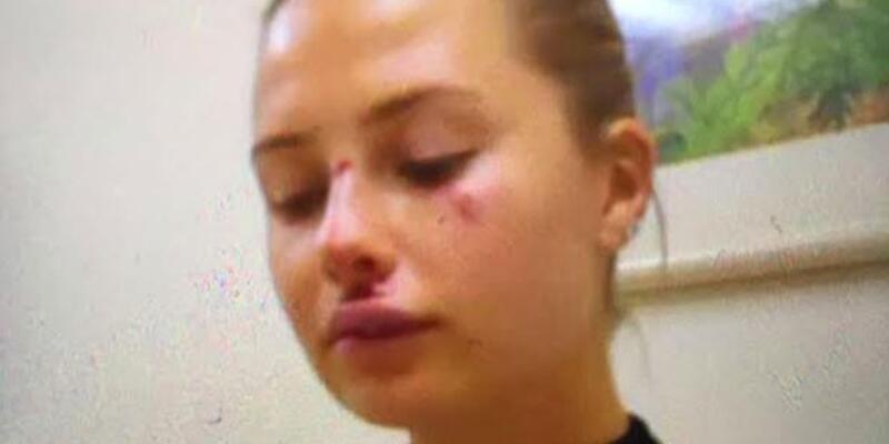 Serdar Ortaç'ın eşi Chloe kaldırımdan düştü