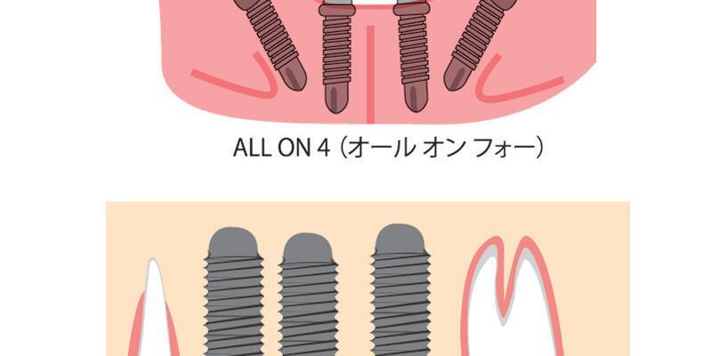 Hızlı sabir dişler: All on 4