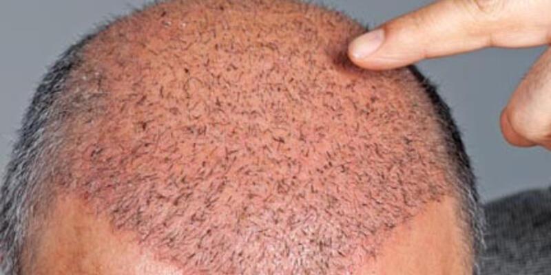 Saç ekimi için en uygun zaman hangisi?