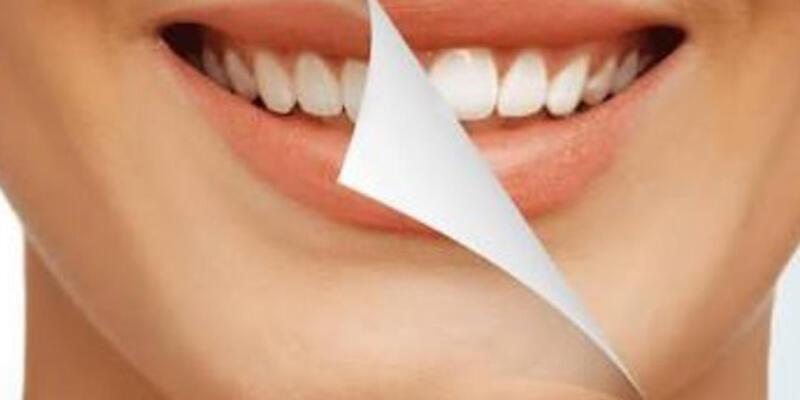 Diş beyazlatmak zararlı mı?