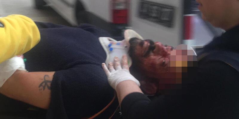 Kaçmak için köpeğini polisin üzerine salan kişi vuruldu