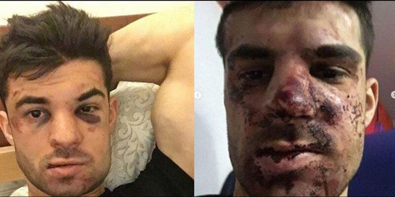 Rus futbolcu Terentyev'i otomobilinde dövdüler