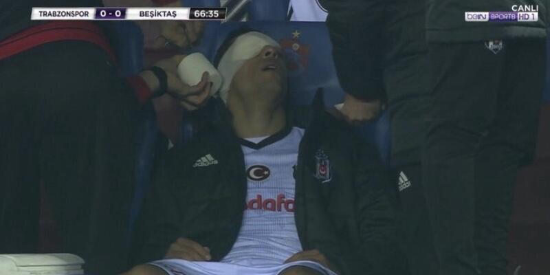 Adriano'nun gözü sarıldı