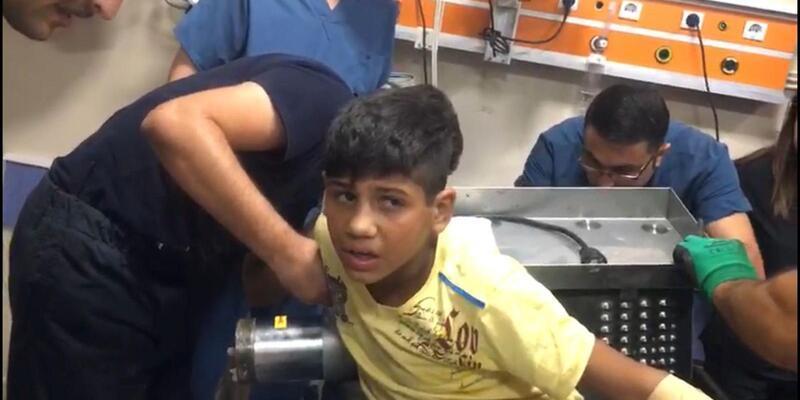 Suriyeli Ahmet'in kopan parmakları yerine dikildi