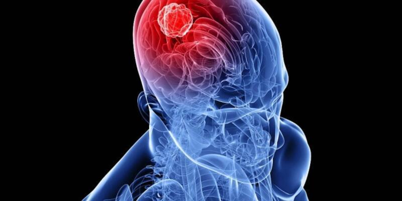 5c90bd10ae78491814e4454a - Beyin Tümörü Nedir?