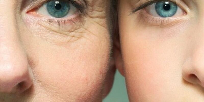 Ağrısız ve acısız gençleşmenin yolu; İple yüz germe