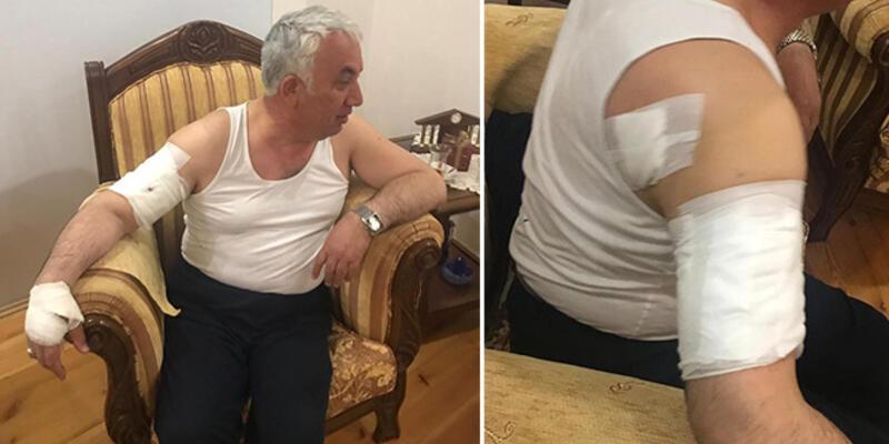 Belediye başkanına köpek saldırdı