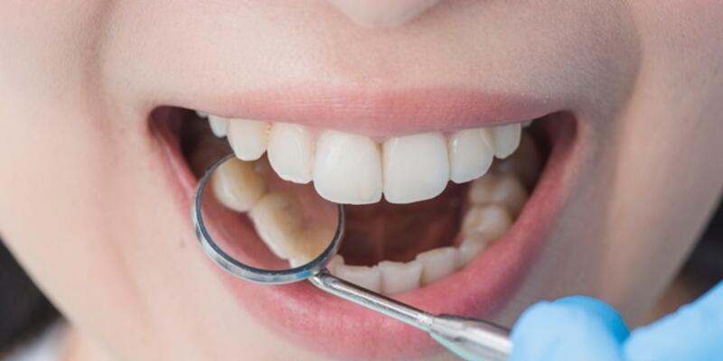Sararan dişler gülmeyi engelliyor