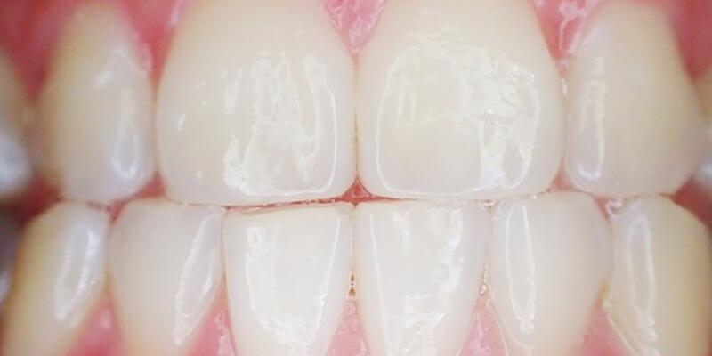 Rüyada Diş Çıkması Ne Anlama Gelir? Rüyada Dişlerin Dökülmesi Nasıl Yorumlanır?