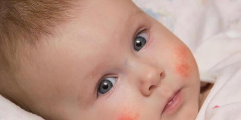 Besin alerjilerine karşı beslenme günlüğü tutun