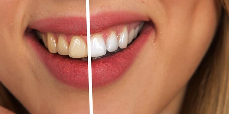 Dişlerde oluşan sararmalar kabusunuz olmasın