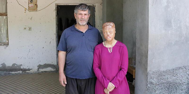 Sağlık Bakanlığı yüz nakli bekleyen Leyla için harekete geçti