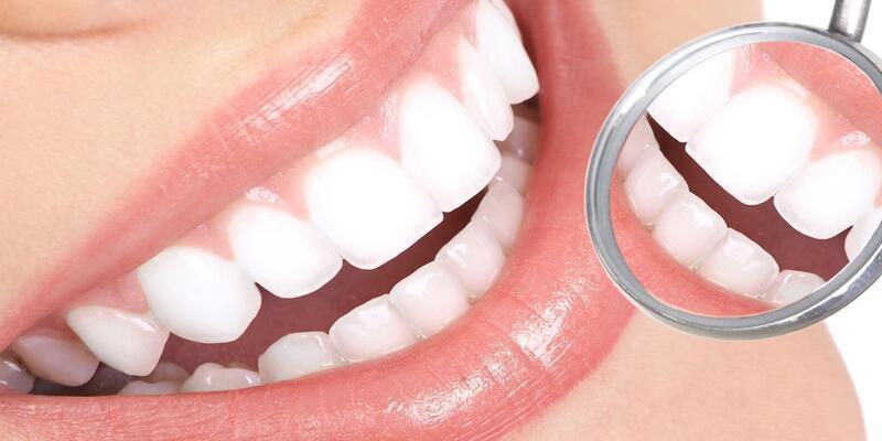 Diş estetiğinde son trend: Gülüş tasarımı