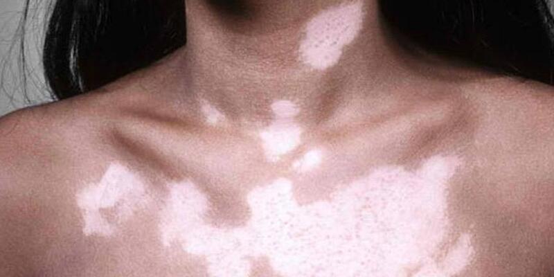 Vücudunuzda beyaz lekeler yayılıyorsa dikkat