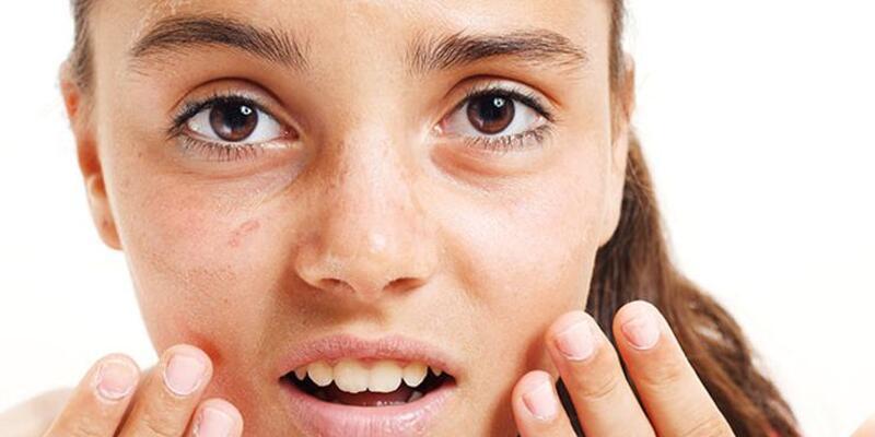 Güneşten yıpranan cildiniz için 5 uygulama