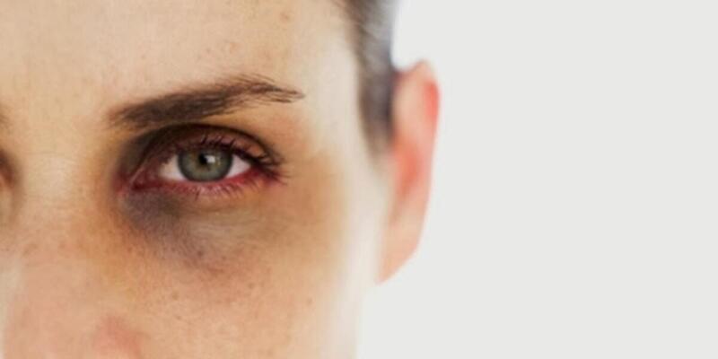 Göz çevresi koyuluklarından kurtulmak mümkün