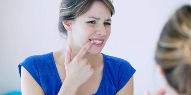 Diş eti kanamaları neden olur?