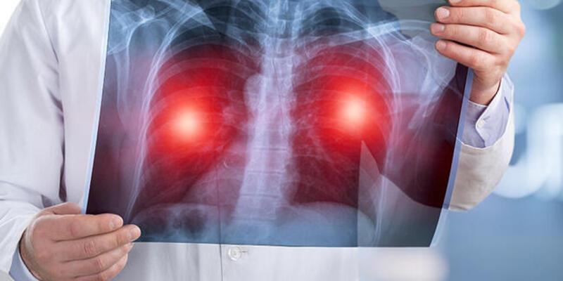 Prof. Dr. Altuğ Koşar: Akciğer kanserine yakalanma yaşı 40'lara kadar düştü
