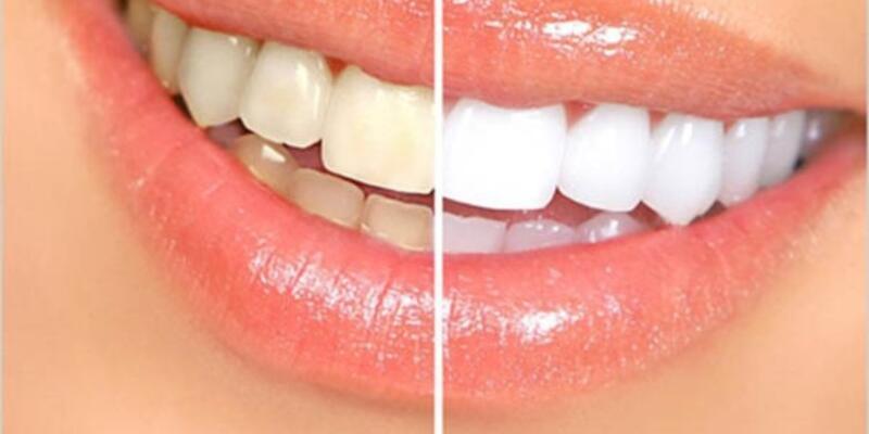 Diş beyazlatma işlemi dişlere zarar verir mi?