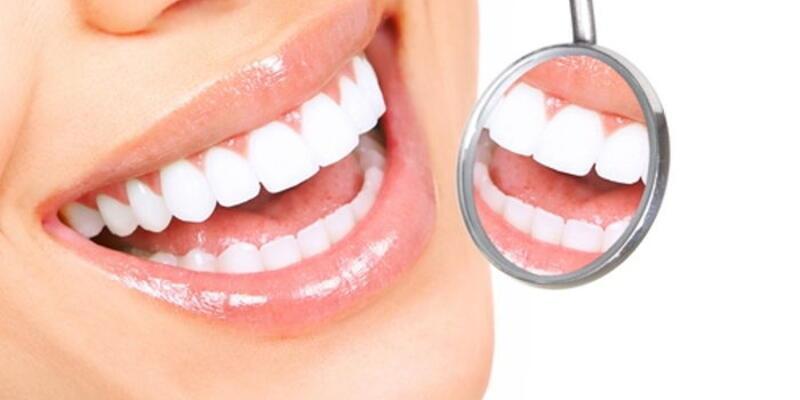 Diş estetiğinde doğru bilinen 10 yanlış