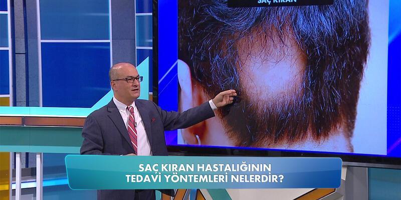 Saç kıran nasıl tedavi edilir?
