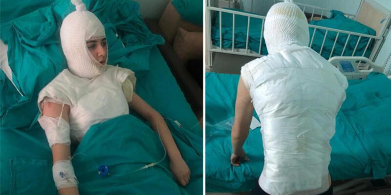 Ümraniye'de üvey anne dehşeti iddiası