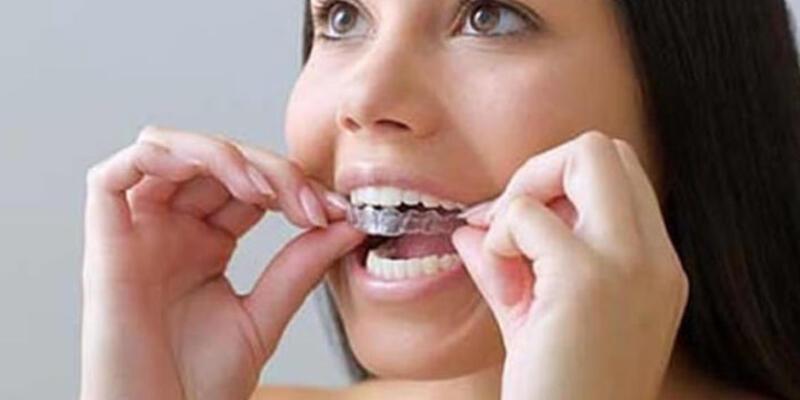 Çapraşık dişler için erken tedavinin önemi