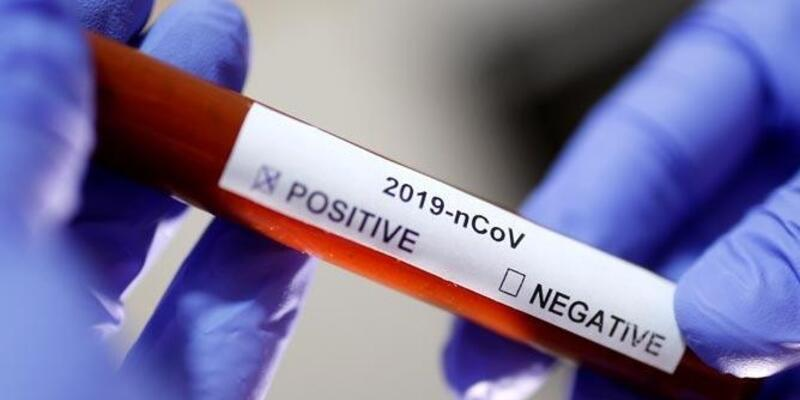 Bilim Kurulu üyesi Kara: Bazı ilaçlar virüse karşı etkili oluyor