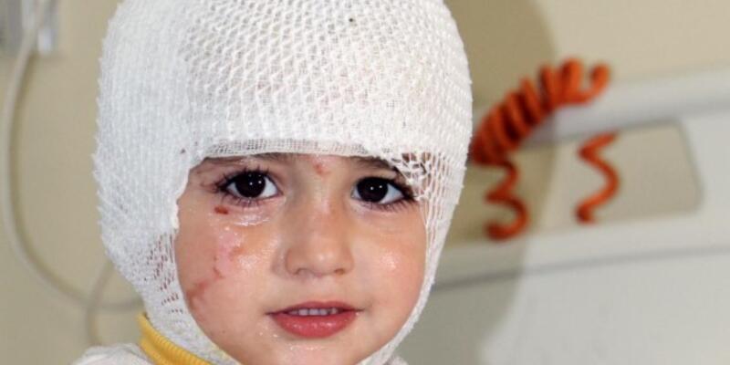 Başına çay dökülen çocuk yandı