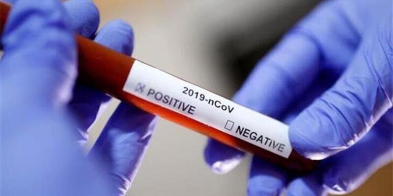 Testler niye farklı sonuçlar veriyor?