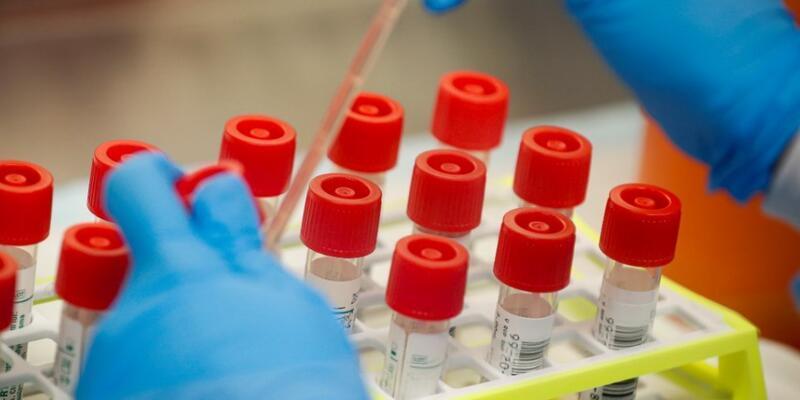 Japonya'dan koronavirüse karşı umut olacak çalışma
