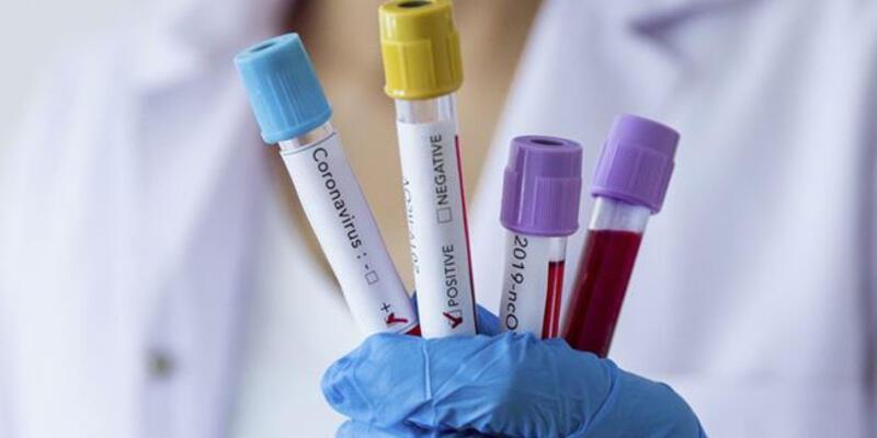 Almanya'da koronavirüs nedeniyle 8 Türk hayatını kaybetti