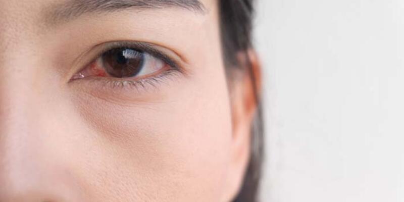Mevsim değişiminde göz alerjisine dikkat