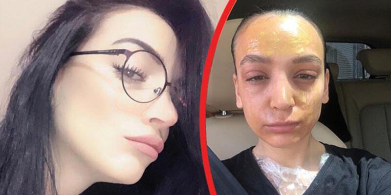 Reklam oyuncusu Özlem Atay hayatının şokunu yaşadı: Lavabo açıcı yüzüne patladı