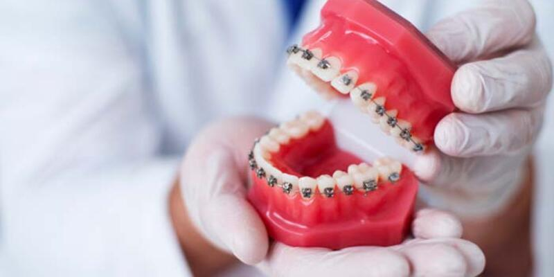 Dijital lingual ortodonti nedir?