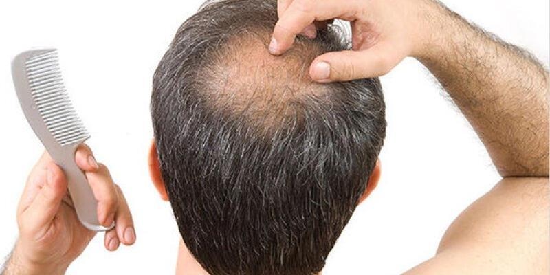 Saç dökülmesine ne iyi gelir? Saç dökülmesine sebep olan şeyler
