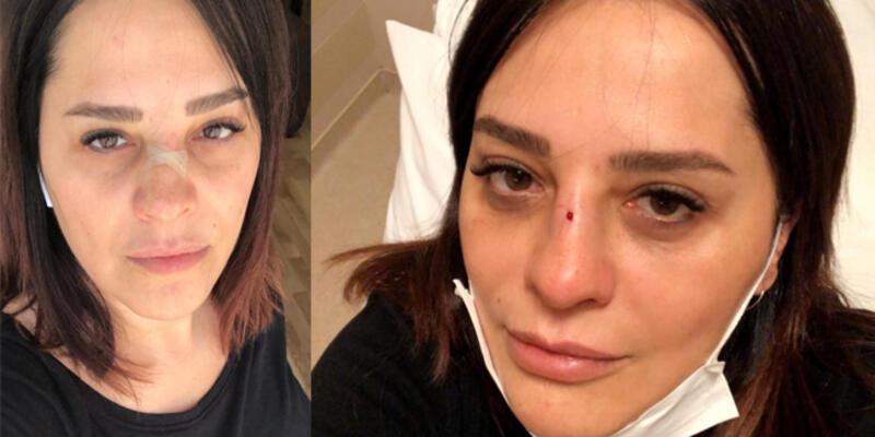 Şarkıcı Reyhan Karaca'nın burnu kırıldı