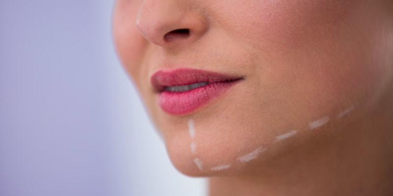 Dolgu enjeksiyonuyla yapılan yüz estetikleri