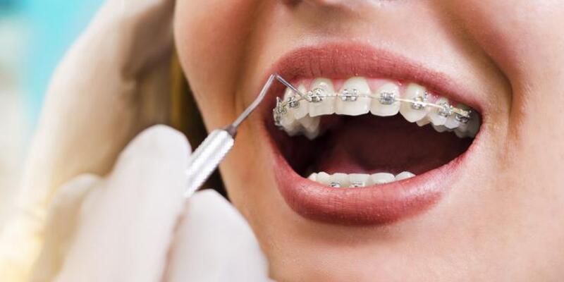 Diş teli olanlar nelere dikkat etmeli?
