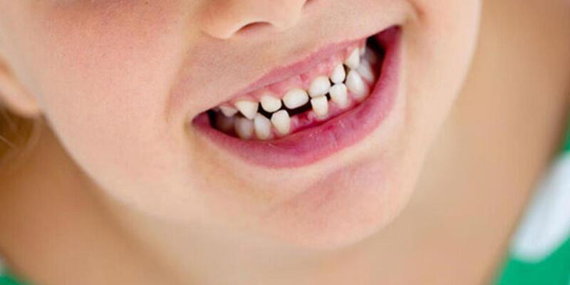 Çocuklarda süt dişleri neden önemlidir?