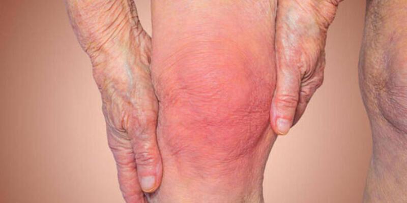 Yetersiz fiziksel aktivite yaşlılarda kas erimesini artırıyor!