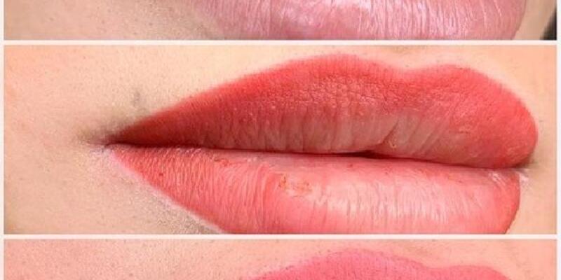 Dudakta oluşan pigment kaybı için öneriler