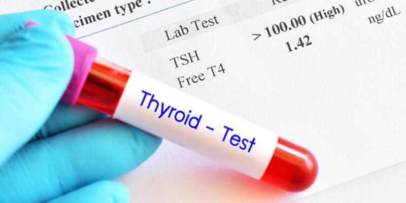 Tiroit hormonu yüksekliği ne anlama geliyor?