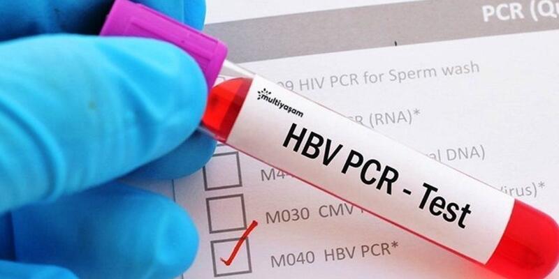 PCR testi ücretleri ne kadar? PCR testi fiyat 2020 - PCR testi nerede nasıl yapılır?