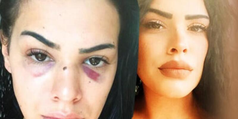 """Bostancı'da taciz ve şiddet: """"Korkudan evime gidemiyorum"""""""