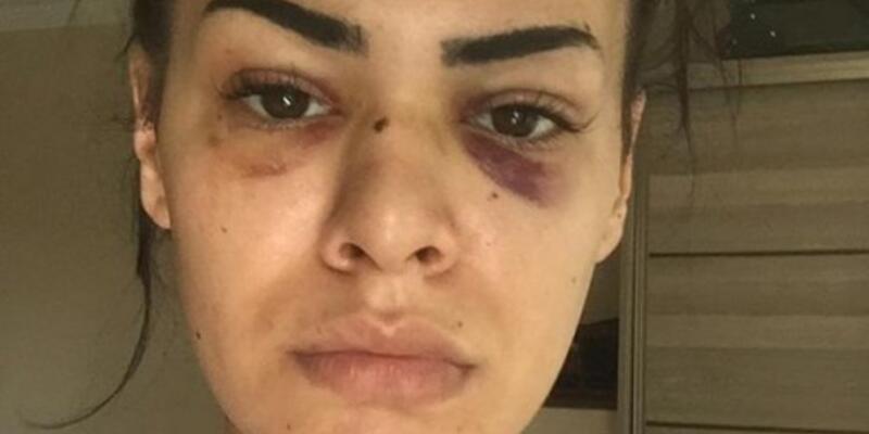 """Son dakika... Tacizcilerin dövdüğü genç kadın: """"Psikolojim iyi değil"""""""