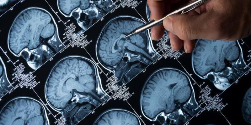 Sağlıklı beslenme Alzheimer riskini azaltıyor